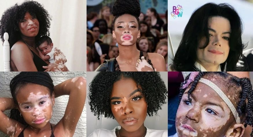 One of the most famous people with vitiligo in the public eye was Micheal Jackson. Each year there is a World Vitiligo Day held on his birthday