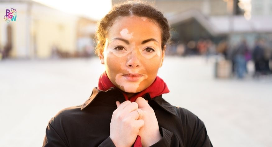 a girl with vitiligo in the city with a coat on