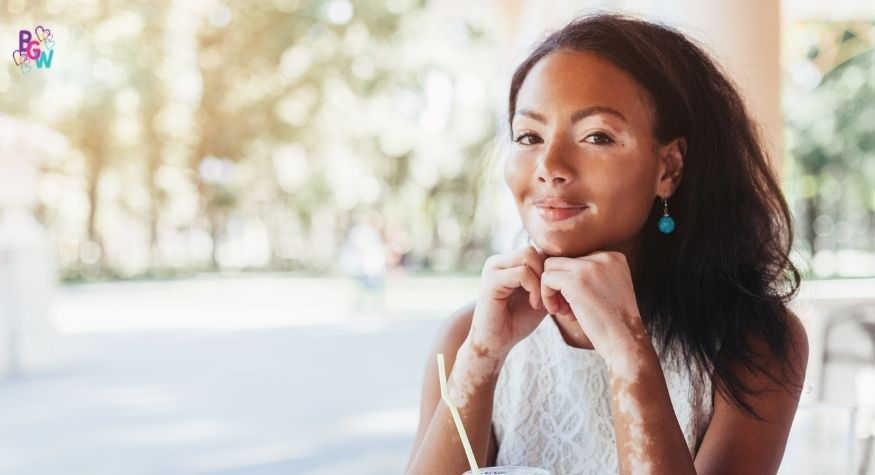 Are There Treatments for a girl with Vitiligo?